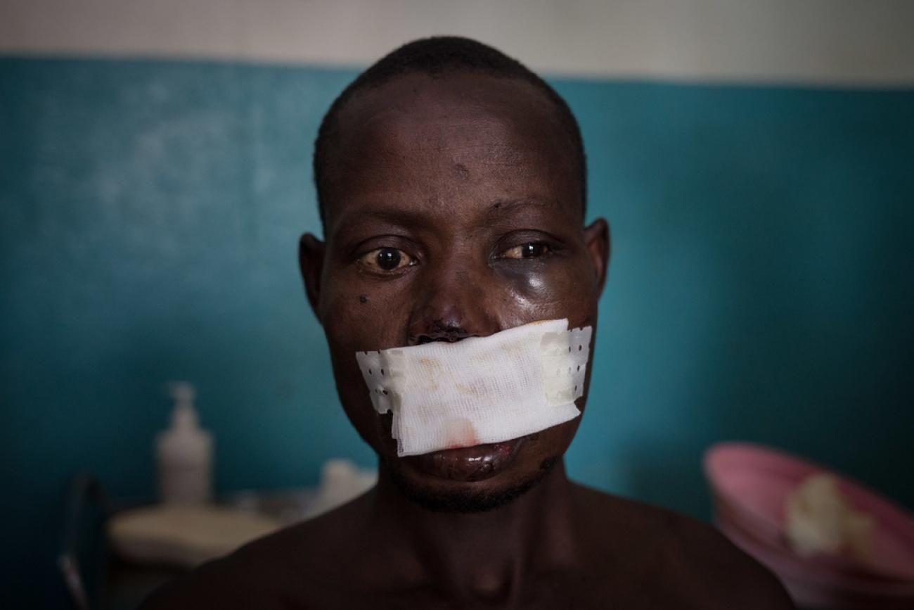 Léonard Gangbe, blessé et pris en charge par MSF.  © Alexis Huguet