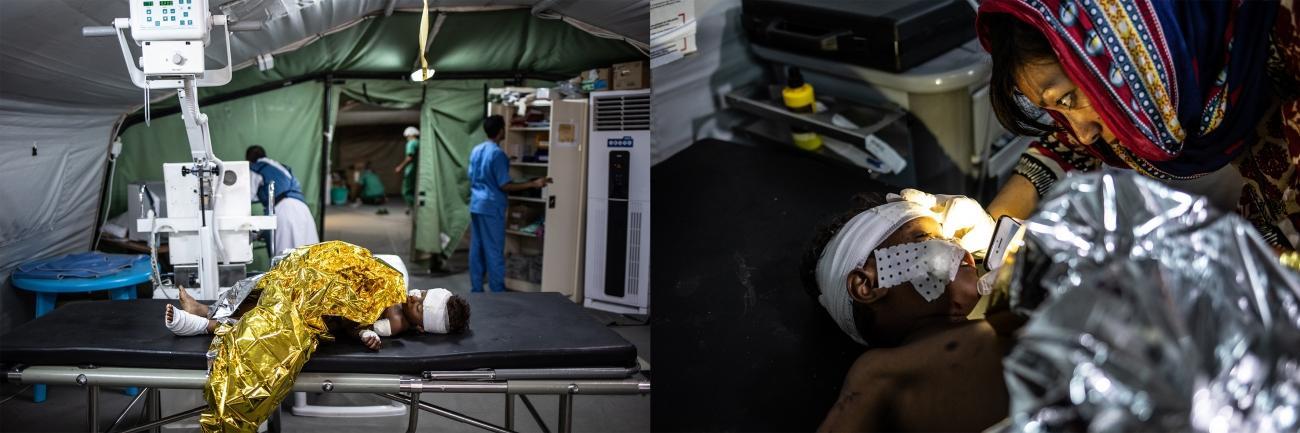 Un enfant blessé dans l'explosion d'une mine à Mawza, dans le gouvernorat de Taïz, est soigné aux urgences de l'hôpital MSF de Mocha. Trois autres membres de sa famille ont été blessés, deux sont arrivés morts à l'hôpital. L'enfant a des éclats dans la crâne, le bras et sur son visage. Il est transféré à Aden pour faire un IRM. Décembre 2018. Yémen.  © Agnès Varraine-Leca