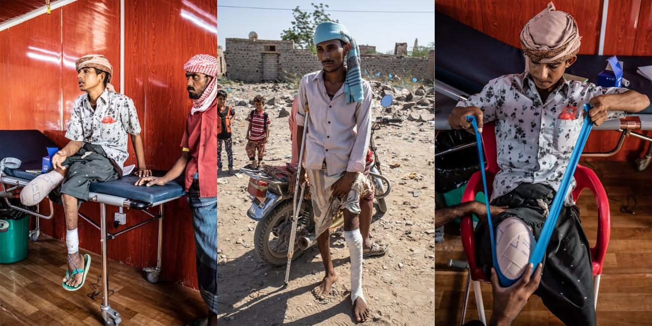 Ali (gauche, droite) et Omar (centre) vivent tous les deux à Mawza. Ils ont tous les deux été blessés par des mines, à six mois d'intervalle. Ali était en retard pour rejoindre des amis et a couru à travers les champs, avant d'exploser sur l'engin. Amputé de la jambe droite, il a des difficultés à marcher avec des béquilles à cause d'une jambe gauche affaiblie par la polio, qu'il a contractée plus jeune. Il vient deux fois par semaine à l'hôpital MSF de Mocha pour suivre des sessions de physiothérapie. Omar a été blessé en mars 2018, alors qu'il se rendait chez son grand-père pour lui donner de l'essence. Il a été transféré directement à Aden, faute de structure de santé capable de l'opérer. L'hôpital de MSF a ouvert plus tard en août 2018 à Mocha afin de dispenser des soins chirurgicaux et médicaux d'urgence aux blessés de guerre venant des lignes de front de Taïz et de Hodeidah, et aux femmes enceintes avec des complications.Décembre 2018. Yémen.  © Agnès Varraine-Leca