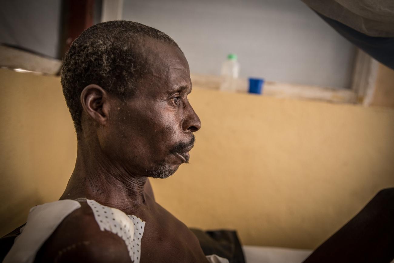 Josua, patient à l'Hôpital régional de Maroua : «J'ai été traité au bloc de chirurgie. Je me sens mieux maintenant qu'ils ont commencé à me traiter, ils me donnent des pilules contre la douleur».  © Pierre-Yves Bernard / MSF