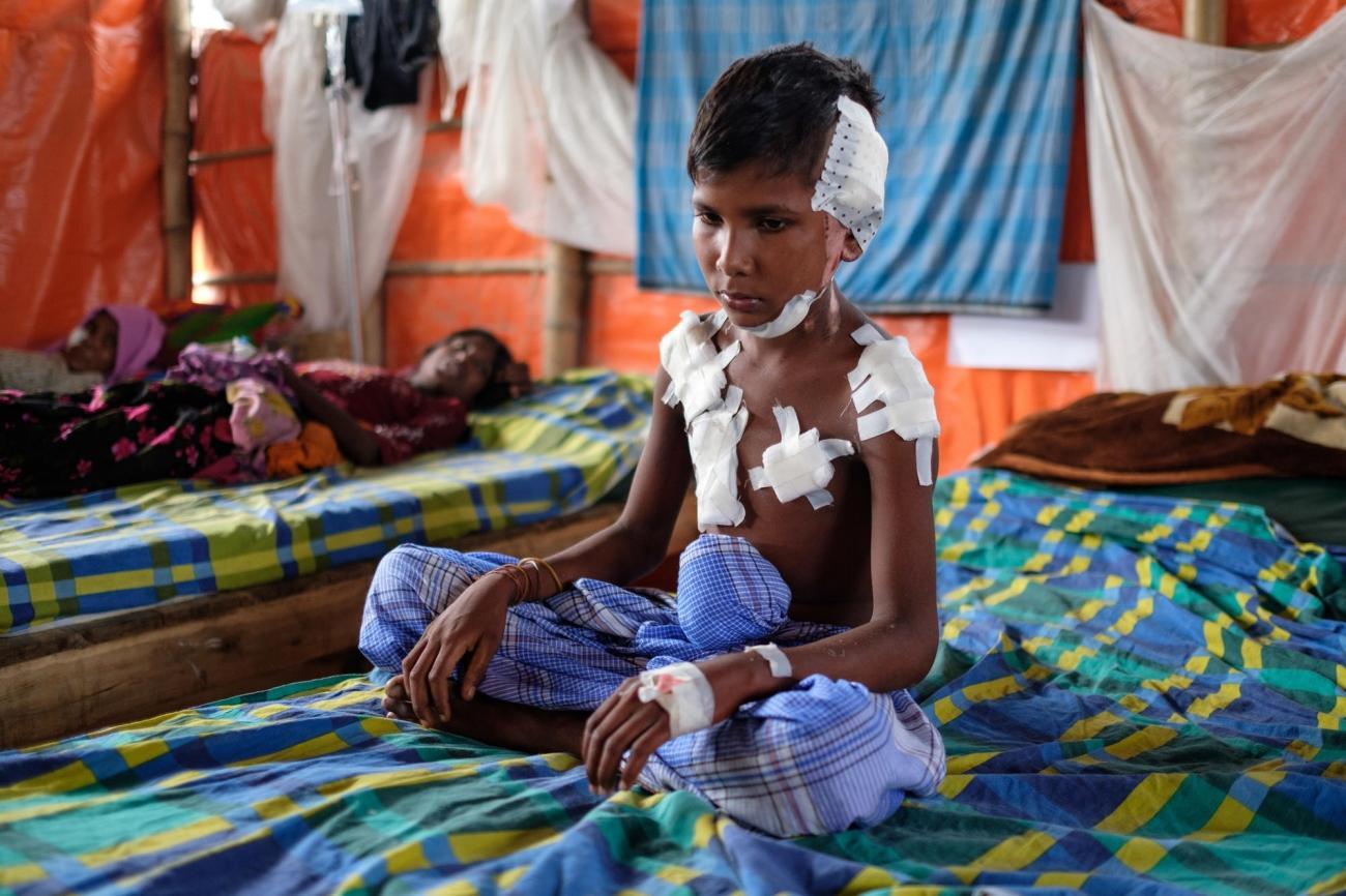 Un jeune garçon blessé est assis sur son lit dans la structure de santé de MSF, camp de réfugiés de Kutupalong  © Antonio Faccilongo