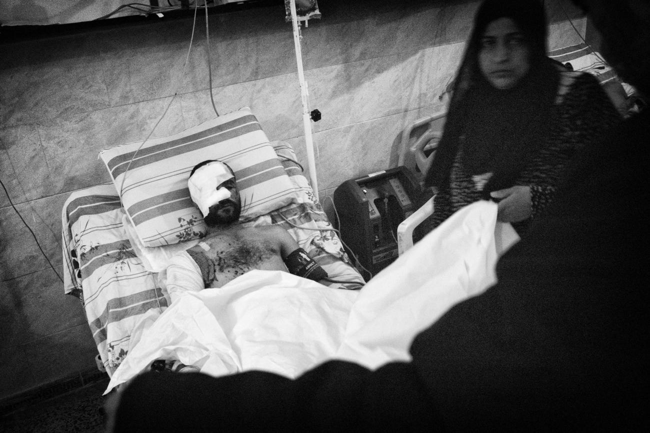 Mohammed est retourné à Rakka pour voir l'état de sa maison. En entrant, il a marché sur une mine. Hôpital de Tal-Abyad.  © Eddy Van Wessel