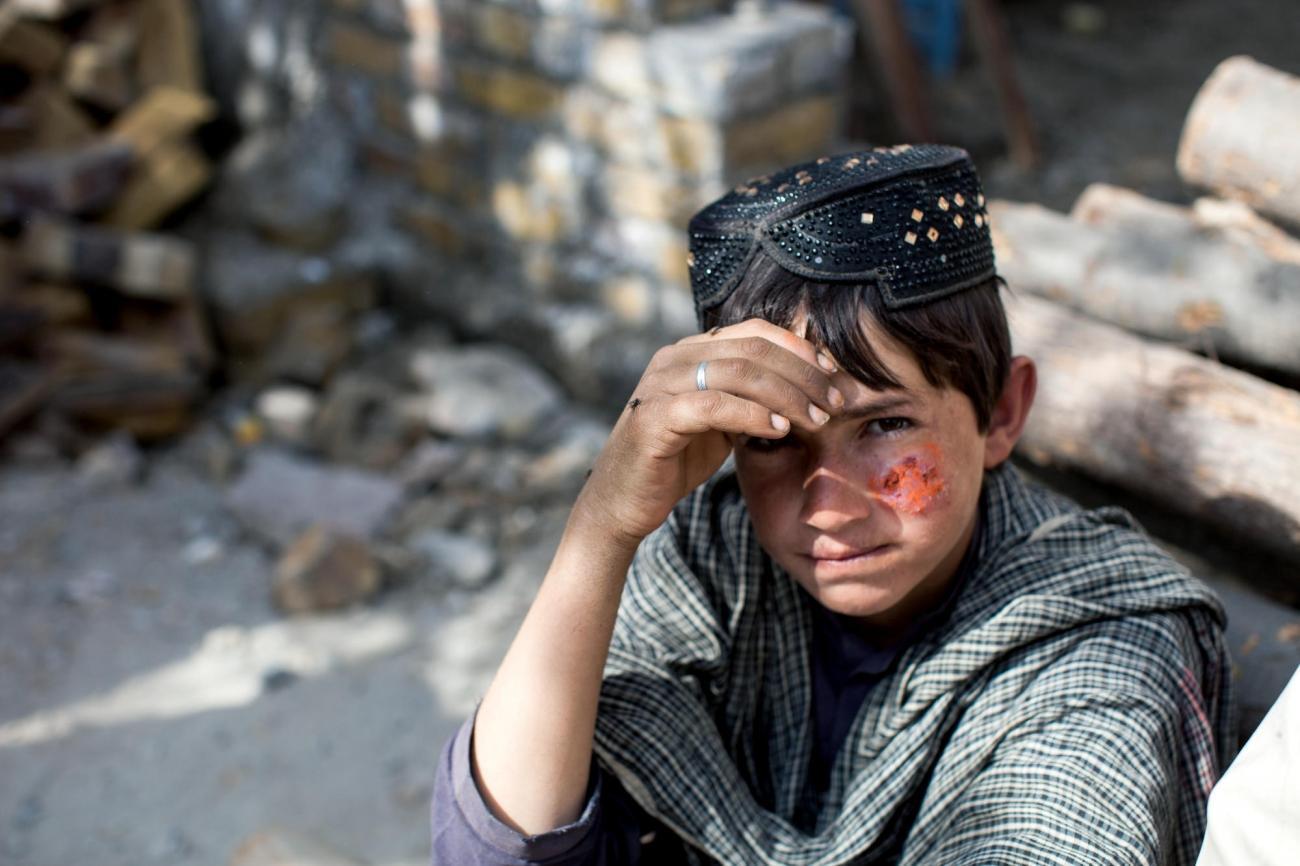 Majeed a 10 ans. Il reçoit un traitement contre la leishmaniose cutanée dans la clinique MSF de Kuchlak. Il doit faire trois heures de bus pour se rendre à la clinique depuis chez lui. Pakistan. 2018  © Khaula Jamil