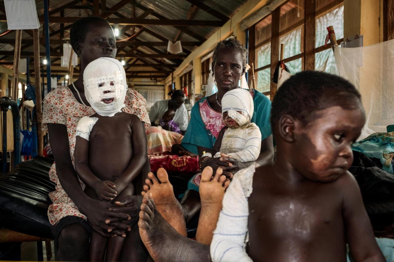 Ces trois enfants jouaientprès du feu alors que de l'eau bouillait. Ils ont été brûlés. Hôpital d'Aweil. 2017. Soudan du Sud.  © Peter Bauza