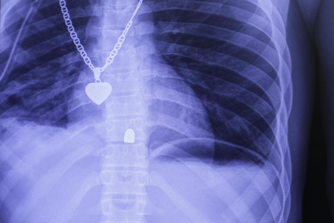 Radiographie du thorax d'un patient victime d'un tir de pistolet. La balle s'est logée dans la colonne vertébrale.L'opération qu'il a subie a permise de vérifier l'absence de lésions des organes internes.  © Nicolas Guyonnet/MSF