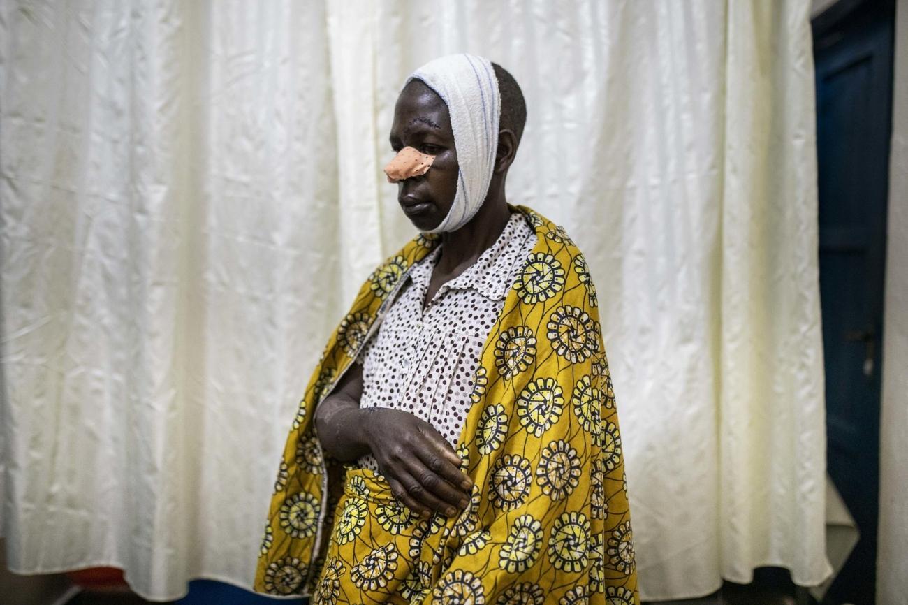 Hôpital général de Masisi, province du Nord-Kivu, République démocratique du Congo. Portrait de Fora. Après un différend sur des droits fonciers, elle a été attaquée à la machette par des membres de la famille de son mari.  © Pablo Garrigos/MSF