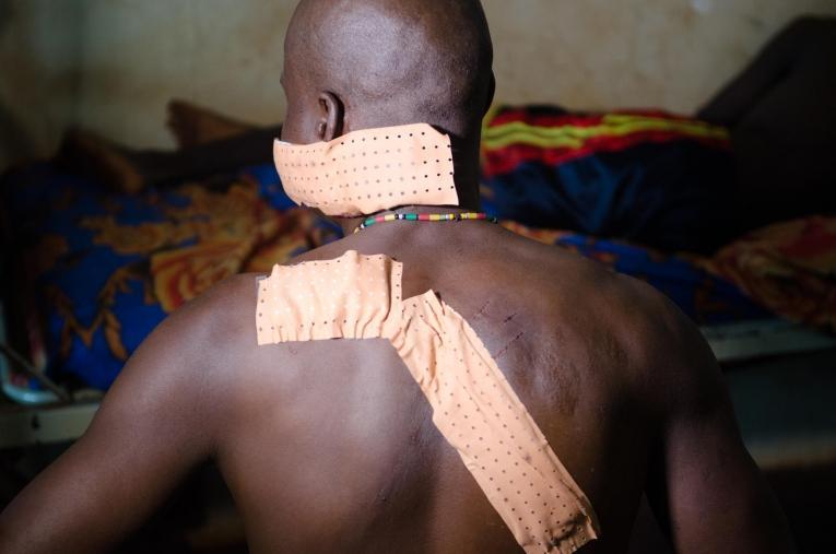 Dieudonné R.vivait à Gambo lorsque le conflit à éclaté. Il à été attaqué à la machette par des combattants.  © Natacha Buhler/MSF