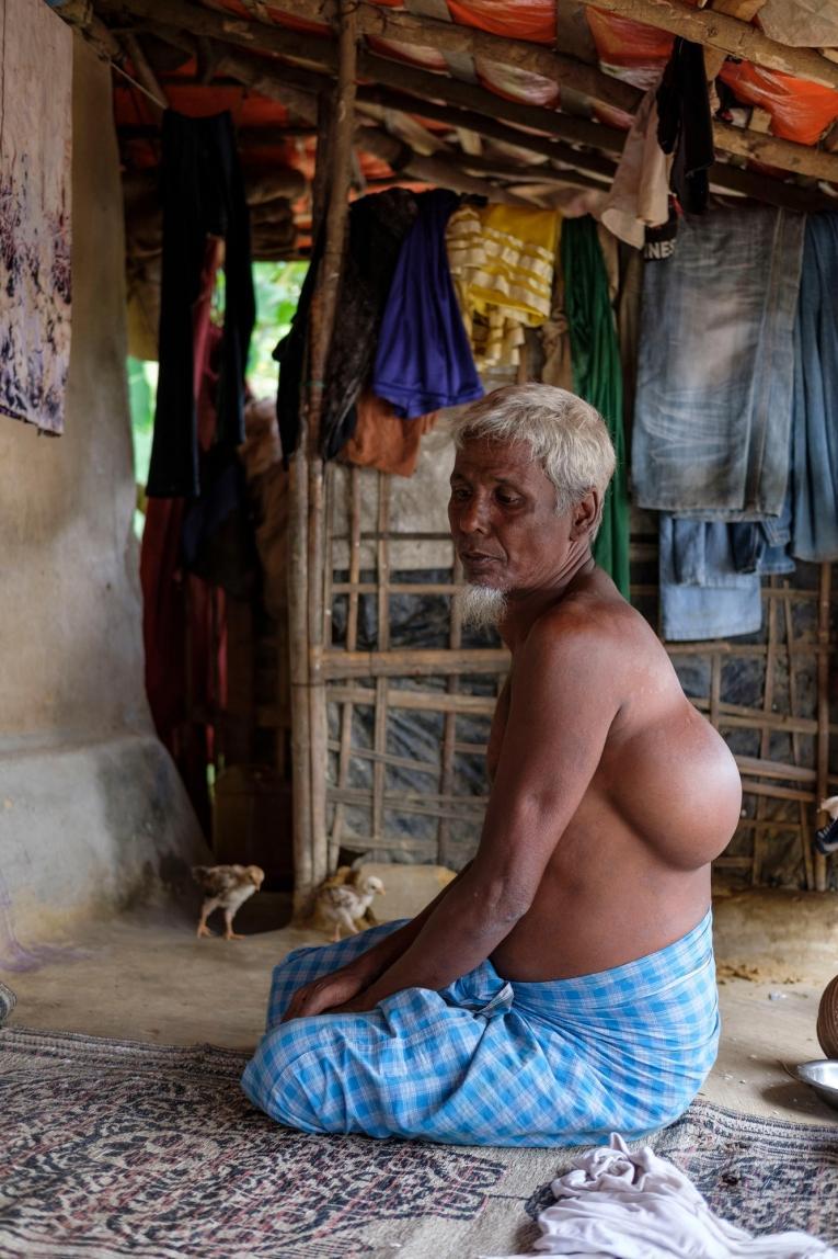 Homme de 61 ans originaire deButhidaung présentant une importante protubérance de tissus mous dans le dos et surla gorge.  © Antonio Faccilongo