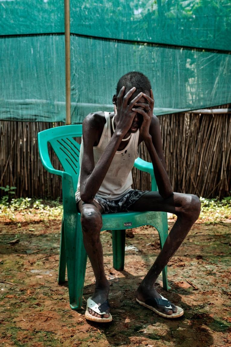 Gatchar, patient pris en charge pour une coïnfection au VIH et à la tuberculose au sein de l'hôpital de MSF du camp de protection des civils de Bentiu.  © Peter Bauza