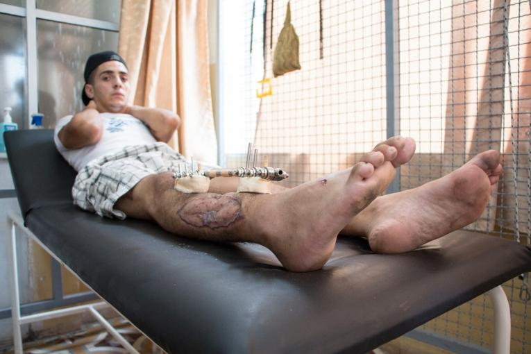 Eyad, 22 ans, dans la clinique MSF de Gaza. 2018.    © Alva Simpson White/MSF