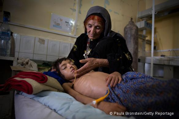 Malnutrition en Afghanistan