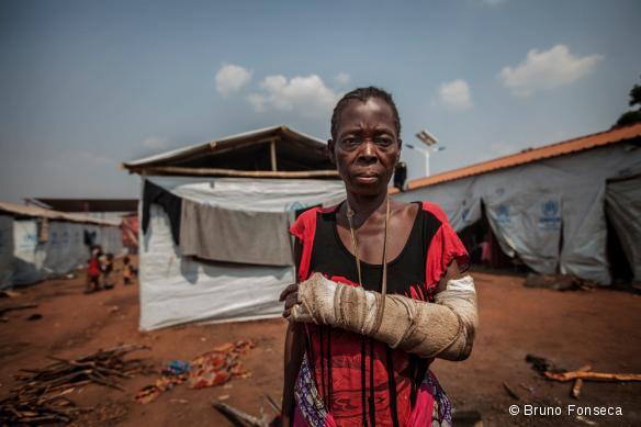 Une femme réfugiée dans le camp de Cacanda, en Angola, en juillet 2017. Elle a été blessée lors de combats dans la région du Kasaï, en RDC.