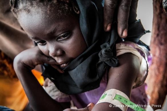 Mesure du périmètre bracchial (MUAC) pour évaluer le degré de malnutrition d'un enfant, dans le camp de Yida.