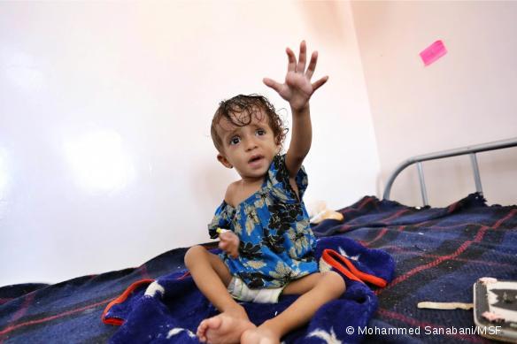 Un enfant atteint de malnutrition sévère, admis à l'hôpital Al Naser du gouvernorat d'Al Dhale, dans le sud du Yémen.
